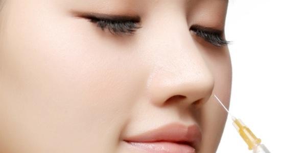 Nâng mũi không phẫu thuật sự lựa chọn an toàn