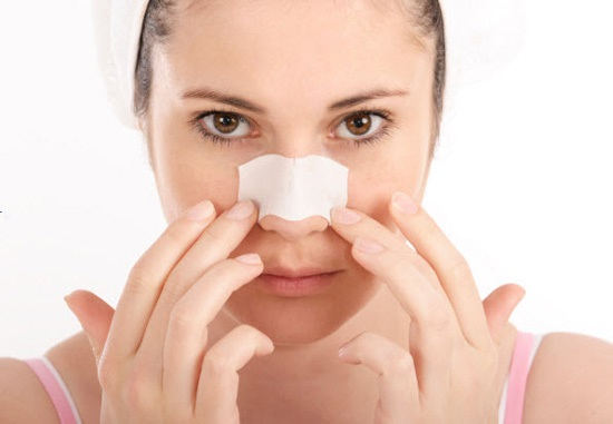 Bóng đỏ da đầu mũi có phải do đi ra nắng sau khi nâng mũi không?