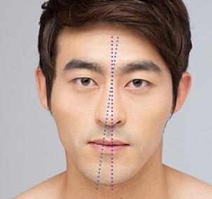 Sửa mũi lệch sau khi nâng mũi